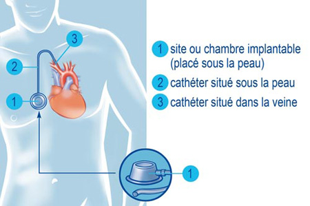 Chimioth rapie une chambre implantable crtt canc rologie - Chambre implantable percutanee ...