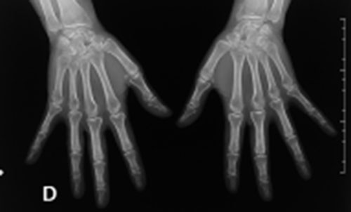 Radiologie/ Radiographie - CRTT